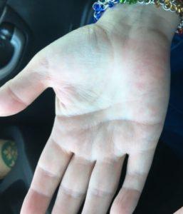 Burned hands